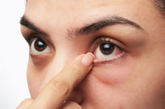 maladie des yeux