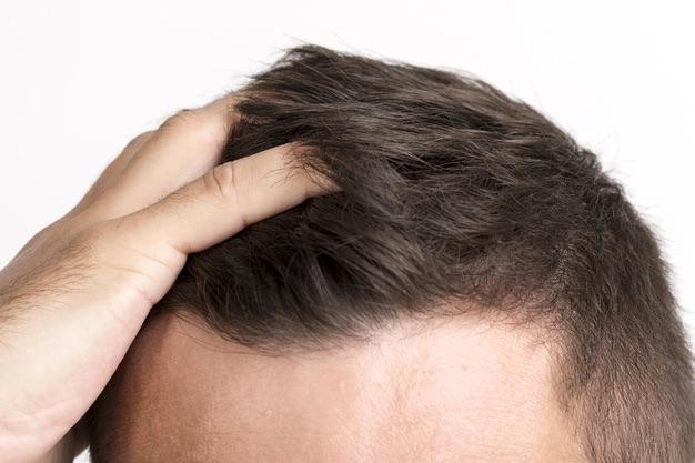 reduire perte cheveux